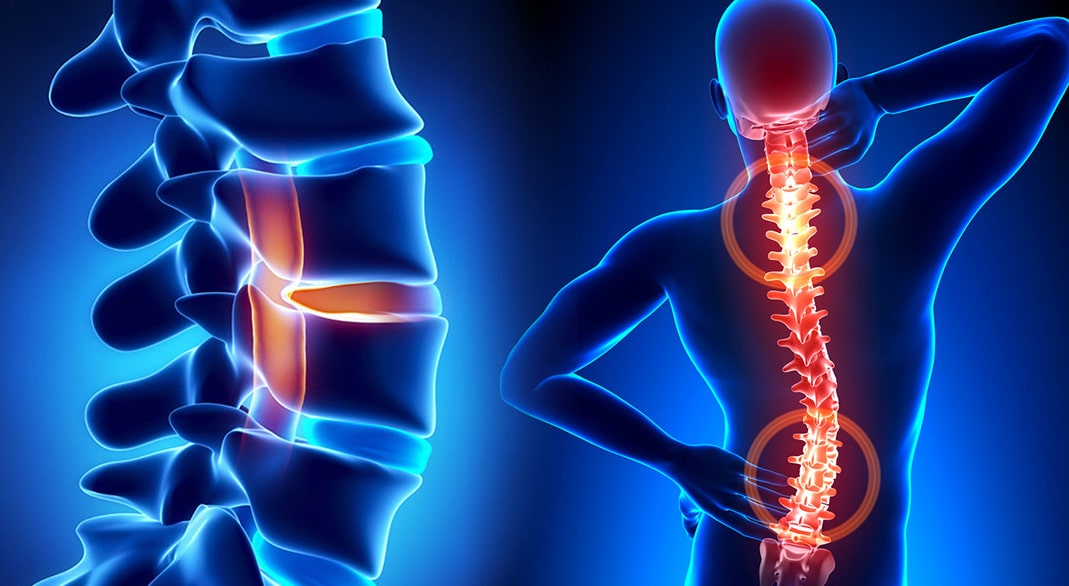 Facet syndrome most often occurs in the cervical area of the neck, followed by the lumbar region of the lower back