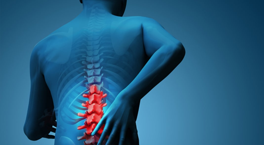 Non-surgical Spinal Disk Hernia Treatment